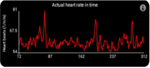 StressLocator heart rate time
